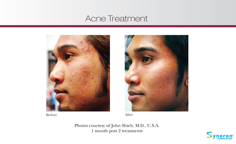thesis on acne