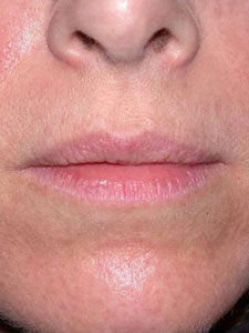 Before lip injections by Shapiro Plastic Surgery