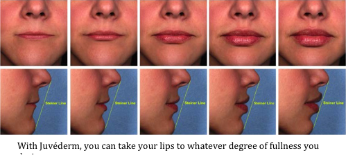 Juvederm lip injections