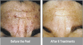vitalize peel, before and after