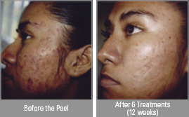 Vitalize peel, before and after, acne