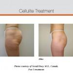 cellulite,