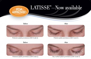 latisse, longer lashes