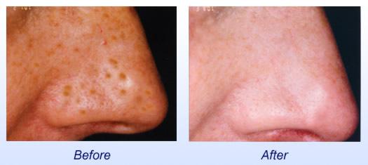 photofacial, freckles