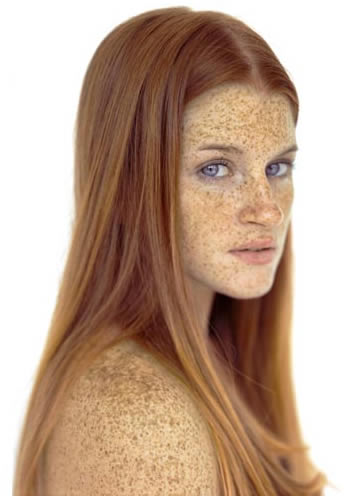 ... their freckles and love them, while others would prefer spotless skin
