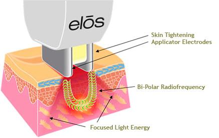 Radio Frequency Rf 101 Understanding Rf Skin