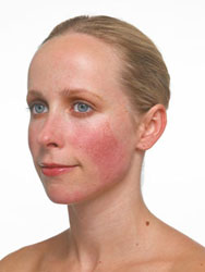 rosacea