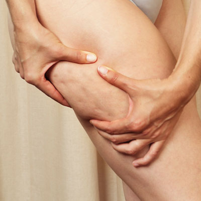 Reduce Cellulite With Velashape Treatments ...