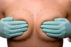 breast-augmentation review