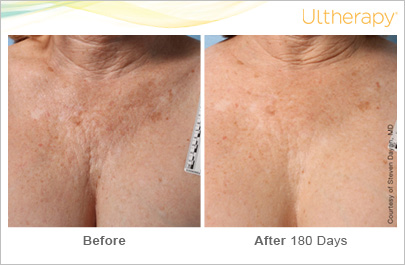D 233 Colletage Skin Care Treatments For Neck And Chest