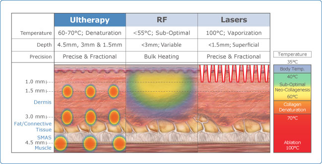 ultherapy-overview