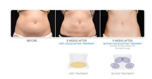 coolsculpting price