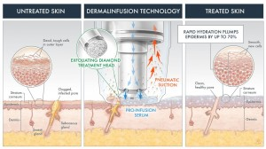 dermalinfusion_techology_1-2-1024x576