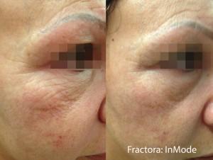 Inmode_Fractore_Wrinkles