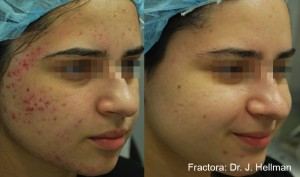Inmode Fractora Acne Scars